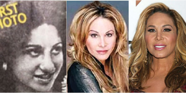 Adrienne Maloof Plastic Surgery Before and After 2019