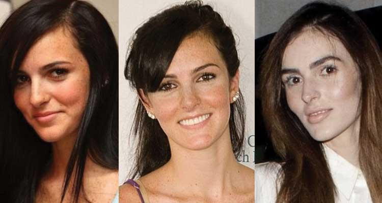 Ali Lohan Plastic Surgery Before and After 2020