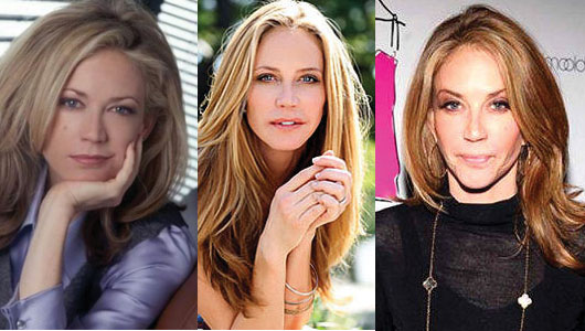 Ally Walker Plastic Surgery Before and After 2020