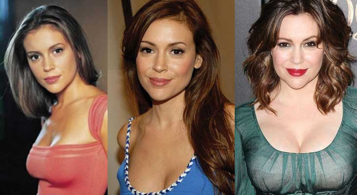 Alyssa Milano Plastic Surgery Before and After 2020