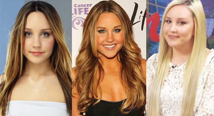 Amanda Bynes Plastic Surgery Before and After 2019