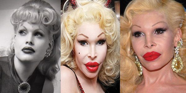Amanda Lepore Plastic Surgery Before and After 2020