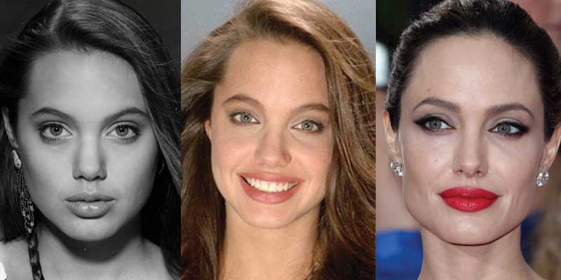 Angelina Jolie Plastic Surgery Before and After 2020