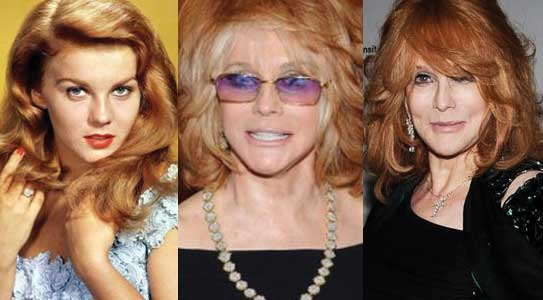 Ann Margret Plastic Surgery Before and After 2020