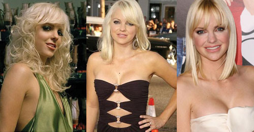 Anna Faris Plastic Surgery Before and After 2021