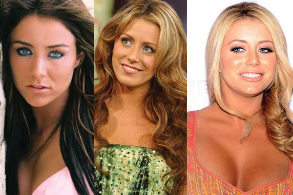 Aubrey ODay Plastic Surgery Before and After 2019