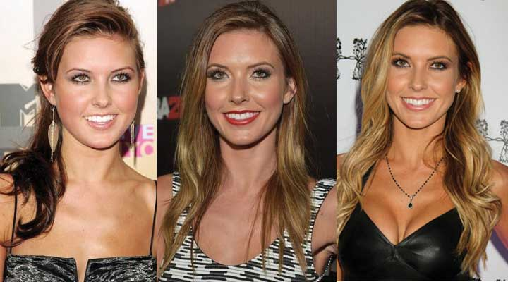 Audrina Patridge Plastic Surgery Before and After 2021
