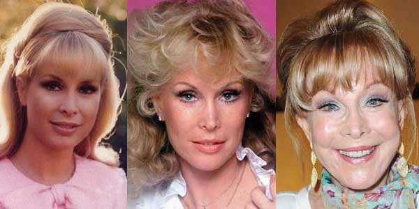 Barbara Eden Plastic Surgery Before and After 2020