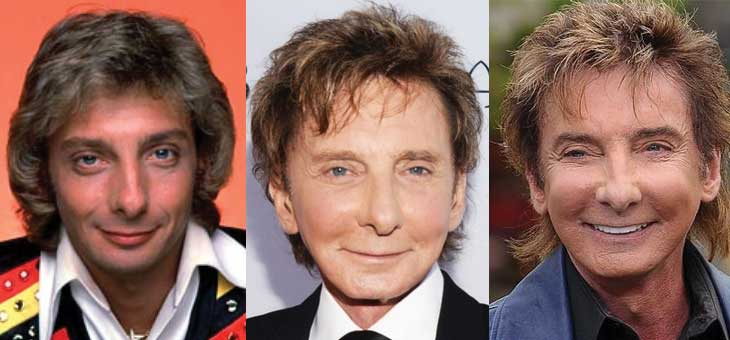 Barry Manilow Plastic Surgery Before and After 2020
