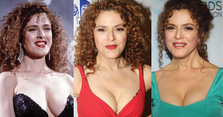 Bernadette Peters Plastic Surgery Before and After 2021