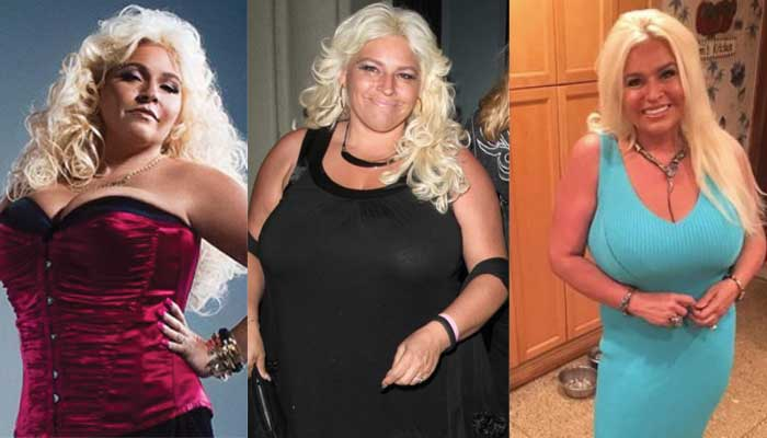 Beth Chapman Plastic Surgery Before and After 2021