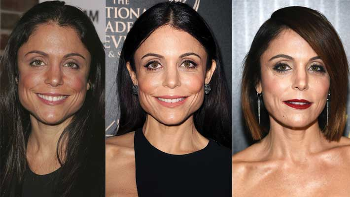 Bethenny Frankel Plastic Surgery Before and After 2019