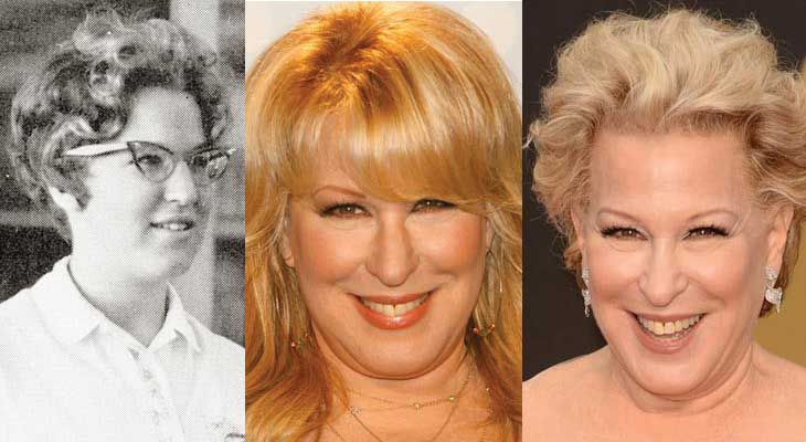 Bette Midler Plastic Surgery Before and After 2020