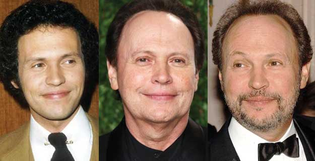 Billy Crystal Plastic Surgery Before and After 2019