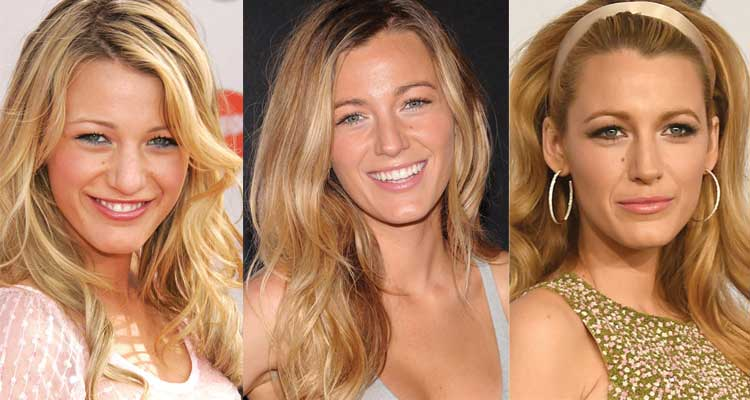 Blake Lively Plastic Surgery Before and After 2020