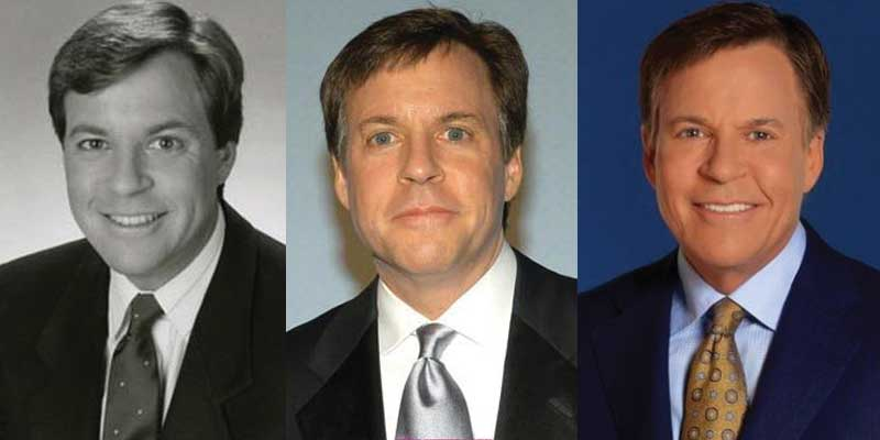 Bob Costas Plastic Surgery Before and After 2019