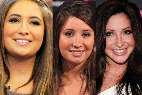 Bristol Palin Plastic Surgery Before and After 2020