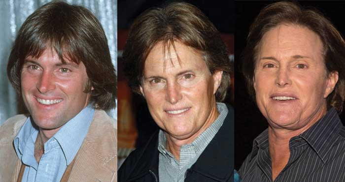 Bruce Jenner Plastic Surgery Before and After 2020