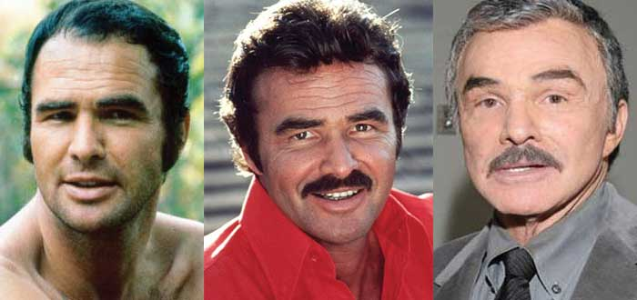 Burt Reynolds Plastic Surgery Before and After 2020