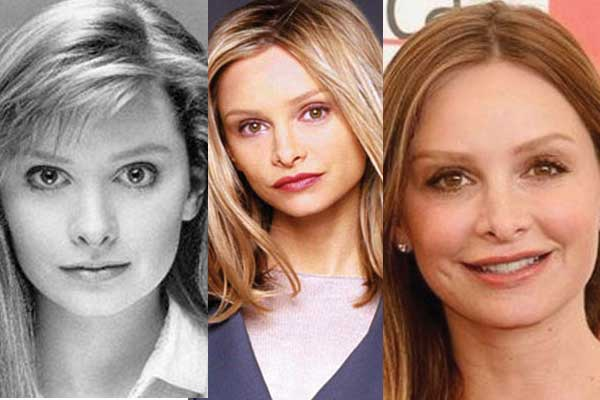 Calista Flockhart Plastic Surgery
