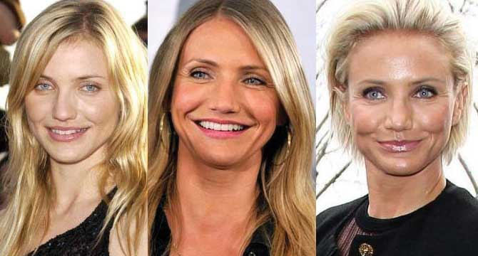 Cameron Diaz Plastic Surgery Before and After 2021