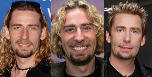 Chad Kroeger Plastic Surgery Before and After 2019