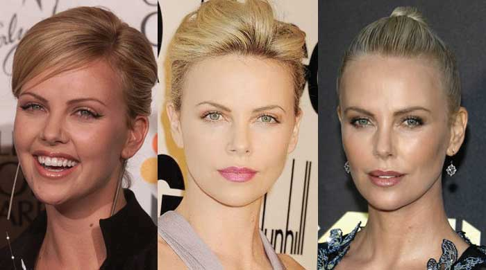 Charlize Theron Plastic Surgery