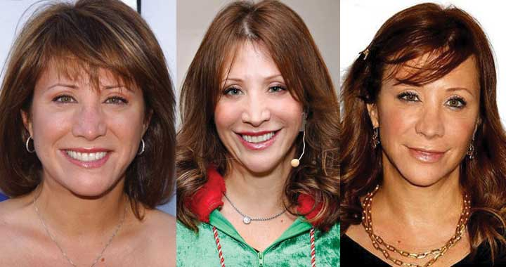 Cheri Oteri Plastic Surgery Before and After 2021