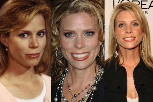 Cheryl Hines Plastic Surgery Before and After 2020