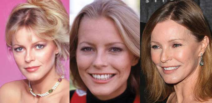 Cheryl Ladd Plastic Surgery Before and After 2020