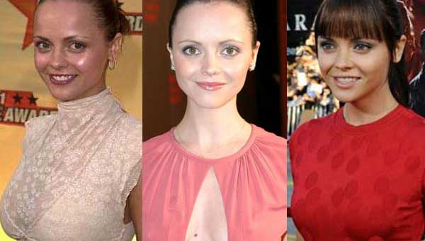 Christina Ricci Plastic Surgery Before and After 2020