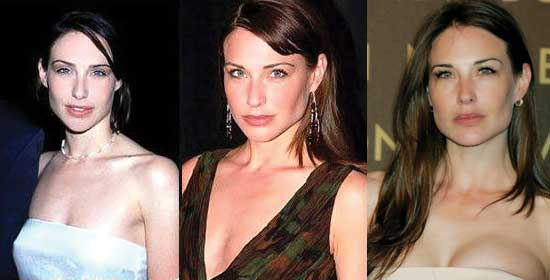 Claire Forlani Plastic Surgery Before and After 2019