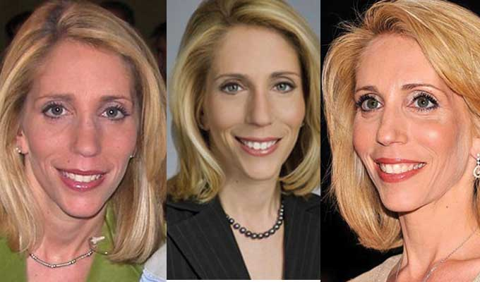 Dana Bash Plastic Surgery Before and After 2021