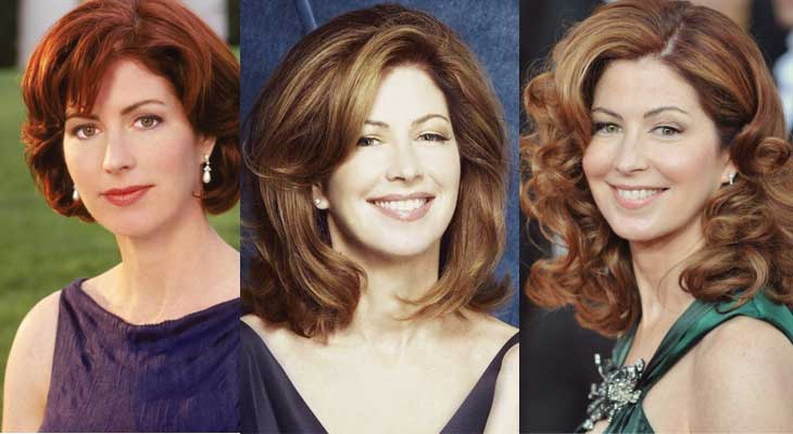 Dana Delany Plastic Surgery Before and After 2020