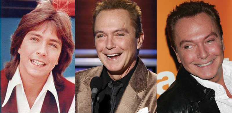 David Cassidy Plastic Surgery Before and After 2020