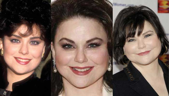 Delta Burke Plastic Surgery Before and After 2020