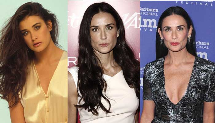 Demi Moore Plastic Surgery Before and After 2019