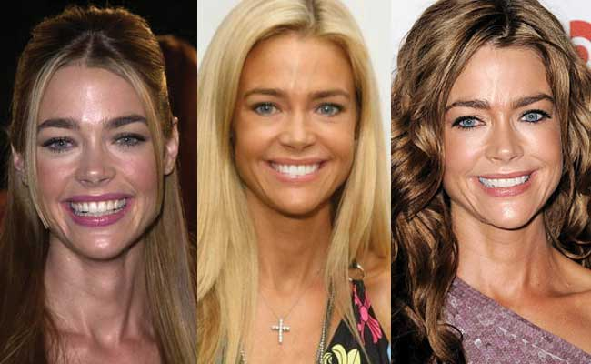 Denise Richards Plastic Surgery Before and After 2019