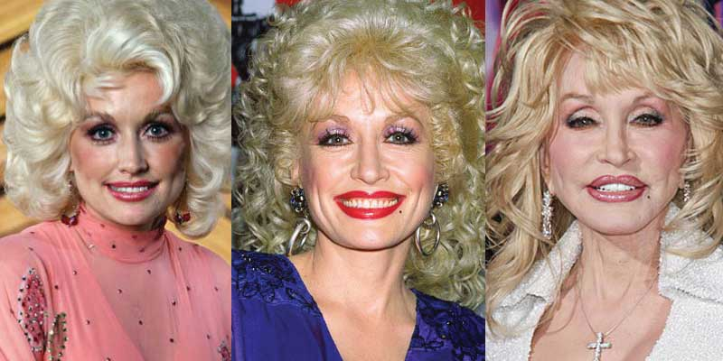 Dolly Parton Plastic Surgery Before and After 2021