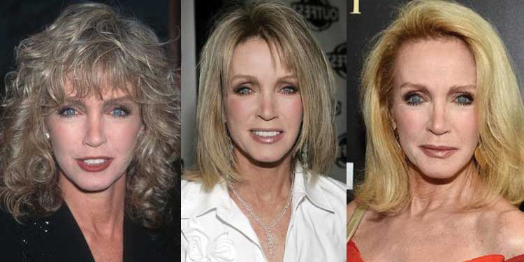 Donna Mills Plastic Surgery Before and After 2020