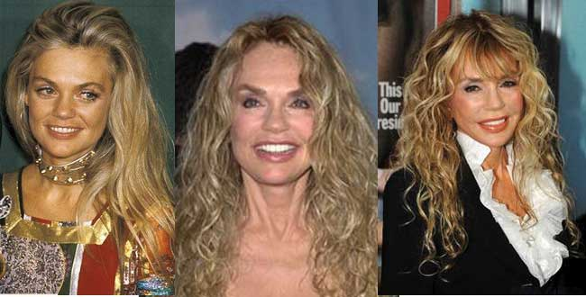 Dyan Cannon Plastic Surgery Before and After 2019