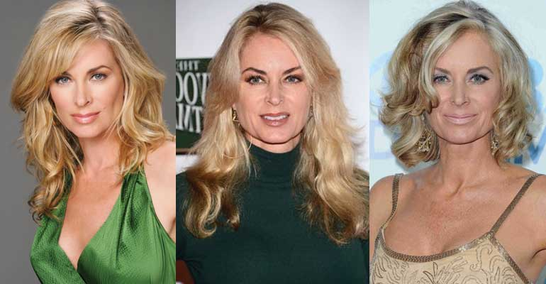 Eileen Davidson Plastic Surgery Before and After 2020