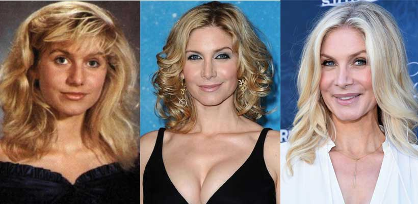 Elizabeth Mitchell Plastic Surgery Before and After 2019
