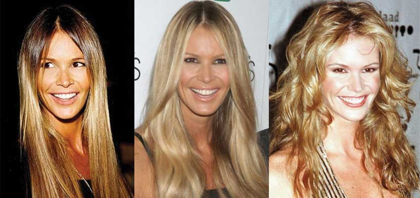 Elle Macpherson Plastic Surgery Before and After 2020
