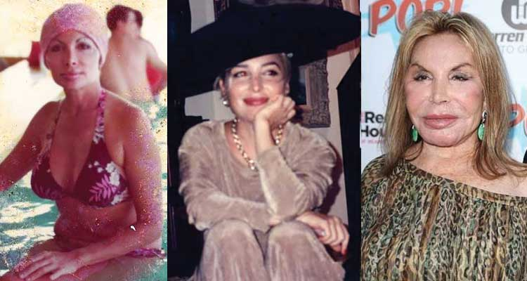 Elsa Patton Plastic Surgery Before and After 2019