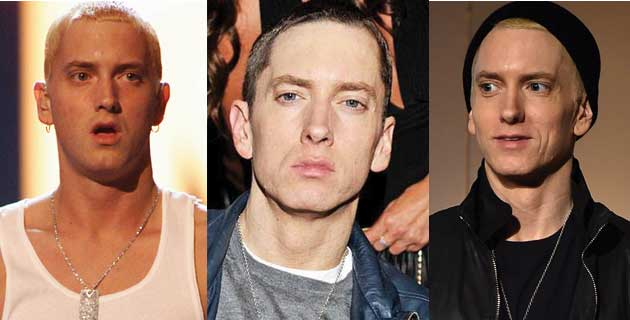 Eminem Plastic Surgery Before and After 2020