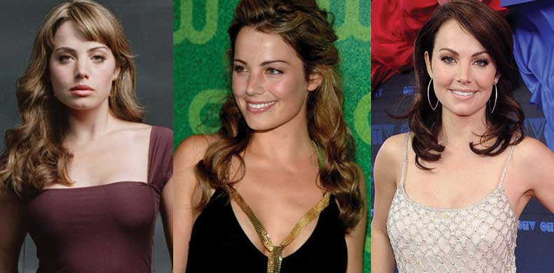Erica Durance Plastic Surgery Before and After 2020