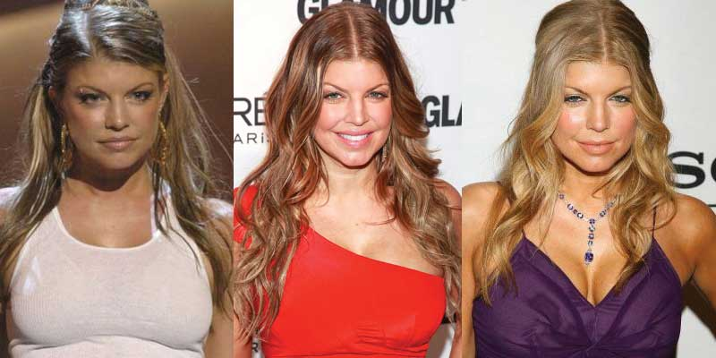 Fergie Plastic Surgery Before and After 2019