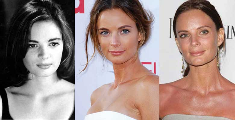 Gabrielle Anwar Plastic Surgery Before and After 2020