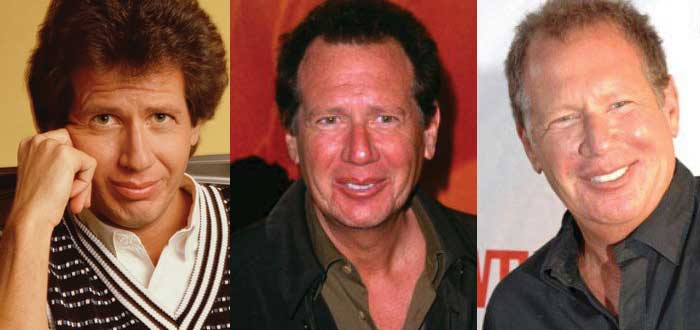 Garry Shandling Plastic Surgery Before and After 2019